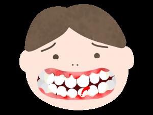 歯ぐきから出血