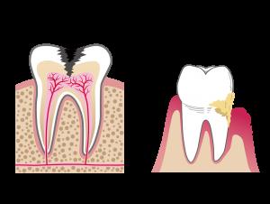 激しい痛みが出現する虫歯
