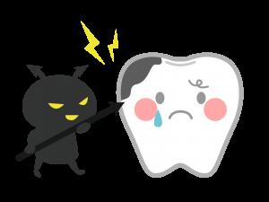 虫歯菌の出す酸で歯が溶かされ、穴があいた状態