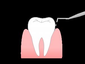 歯と歯ぐきの境目(歯頸部)