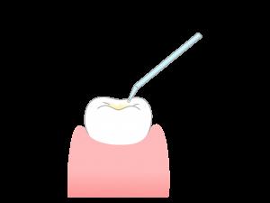 奥歯の噛む面(溝の部分)