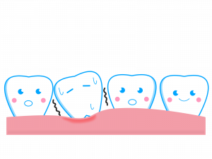 歯のぐらつき