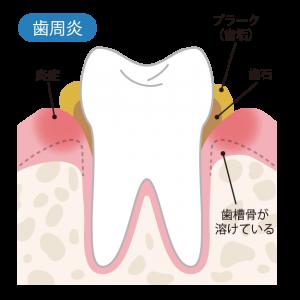 治療が長引く理由①歯石や歯肉の環境が悪い